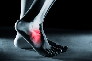 Ankle Sprain Treatment Fairfax